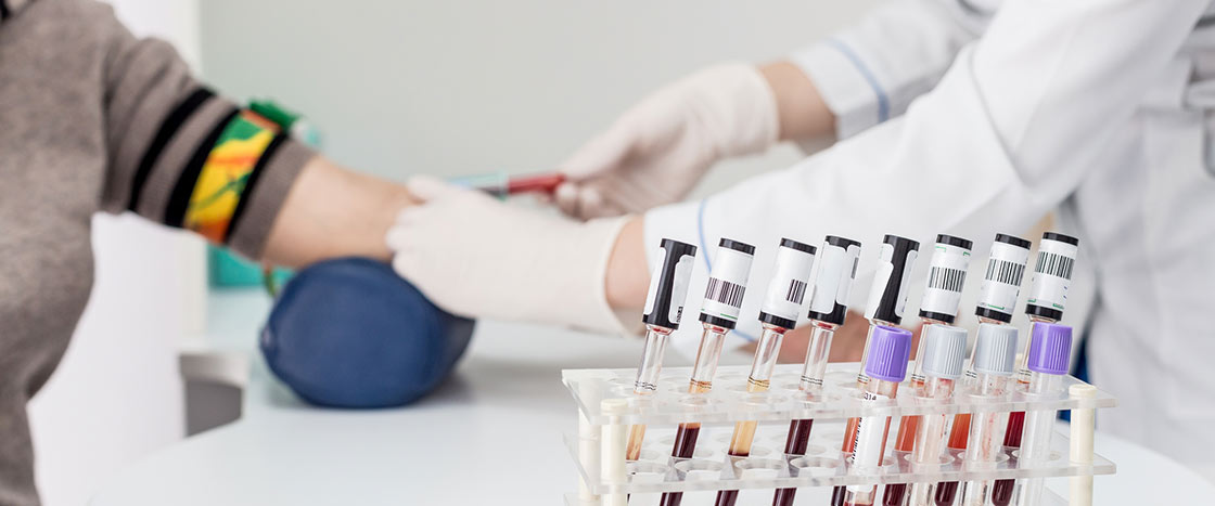 blood test to early prediction of Alzheimer's progression
